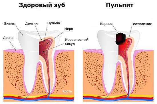 Растет десна возле зуба