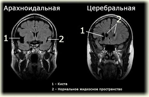 kista-shishkovidnoy-zhelezi-rassosatsya