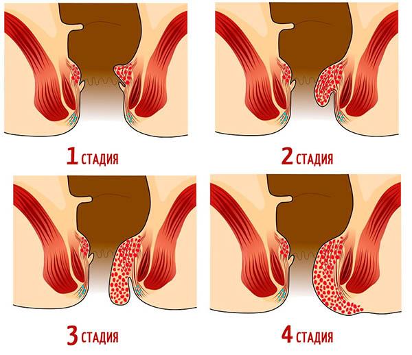 Народные средства в лечение рака кишечника