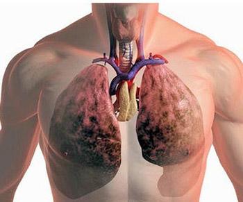 Лечение усом рака легких