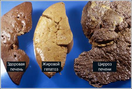 Цирроз печени, лечение цирроза печени народными средствами
