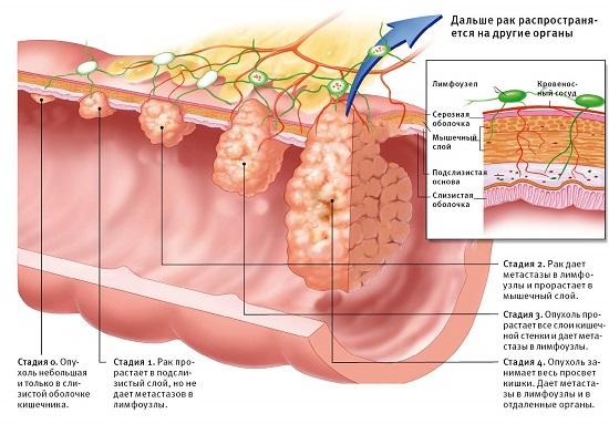 Рак прямой кишки первые симптомы лечение народными средствами