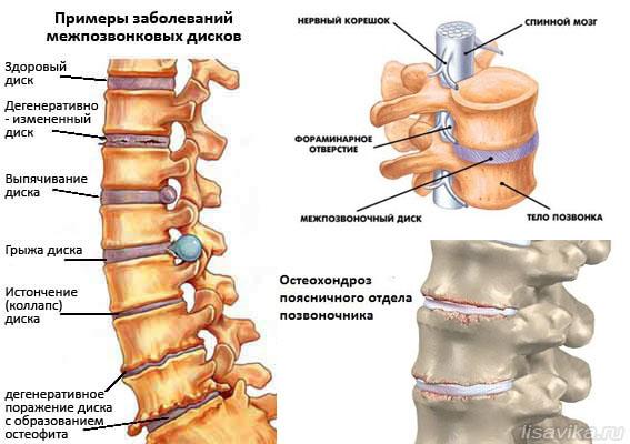Если сильно болят суставы Лечение суставов