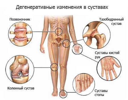 Больно ходить сустав надколенного сустава